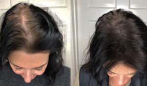 Medusa Saç Serumu Kullanıcı Yorumları ve Fiyatları