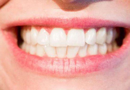 Evde Diş Beyazlatmanın En İyi Yolu Nedir?